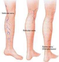 comment enlever les varicosités