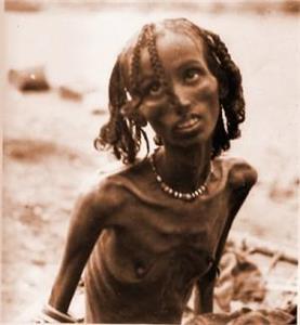 Selon Vous Quel Est Le Pays Le Plus Pauvre Au Monde Toluna