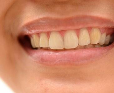 Resultado de imagem para dentes saudáveis