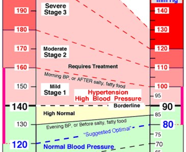 Which blood pressure reading is categorized normal for a typical adult?