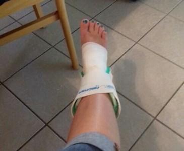 Gips bein gebrochen Bein gebrochen