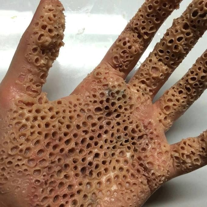 If This Makes Your Skin Crawl You Could Have Trypophobia Toluna