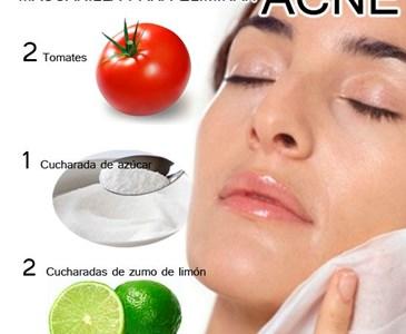 cicatrices y manchas rojas de acne
