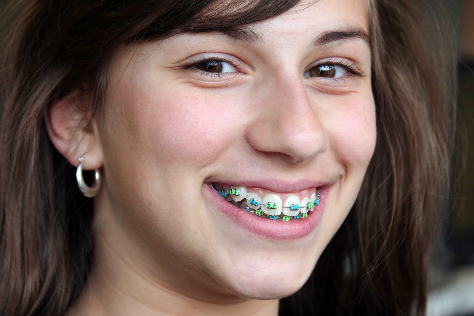 Shannon braces, cold milfs