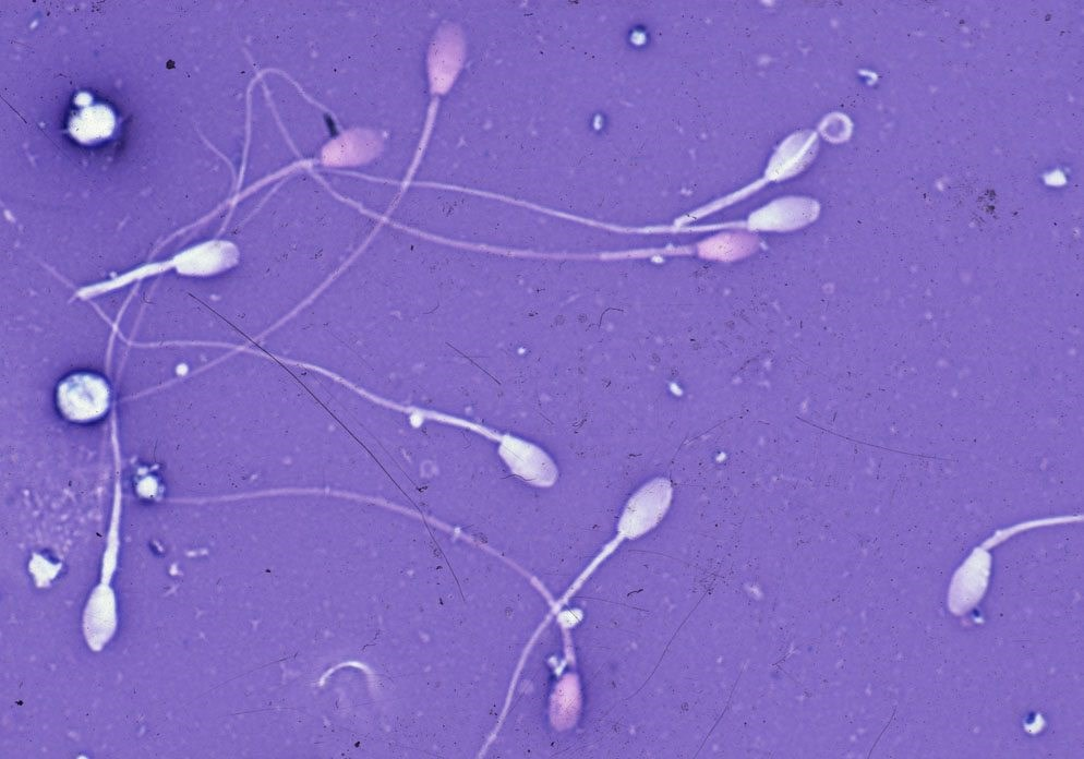 sperma-more-spermi